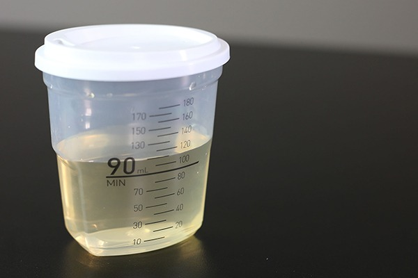 Urine collection cup full slightly over 90 milliliters.