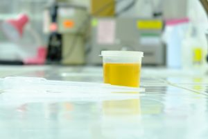 urine sample drug-test